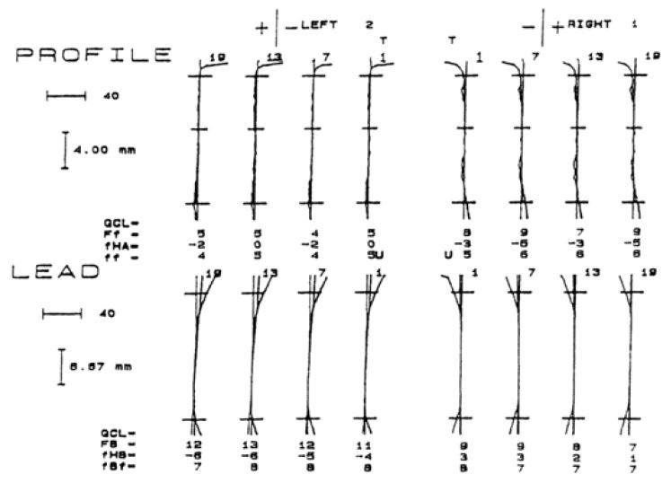 Standard moreover Isolation In Endodontics together with 526194451 besides Boca in addition 567594359262232343. on tooth diagram